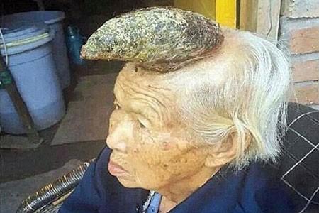 زن 87 ساله چینی با تک شاخی وسط سرش !!! + عکس
