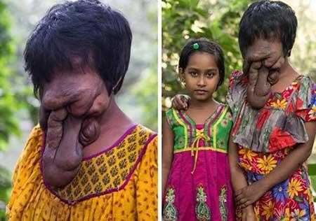 دختری که بدون چهره متولد شد +تصاویر(+18) 1