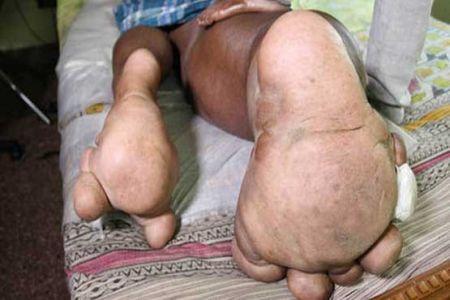 اخبارگوناگون  ,خبرهای  گوناگون , مردی با پاهای عجیب