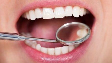 دندانها کمبود ویتامین D را نشان میدهند 1