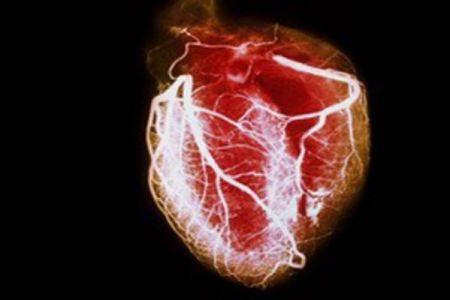 اخبارپزشکی,خبرهای پزشکی,قلب