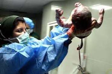 اخبارپزشکی,خبرهای پزشکی,نوزاد