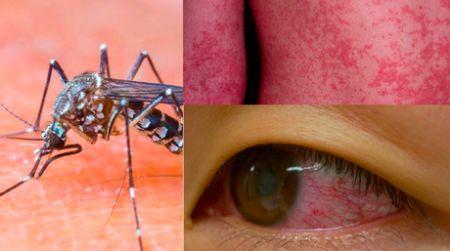 اخبار پزشکی ,خبرهای    پزشکی ,ویروس زیکا