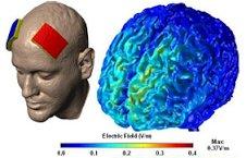 اخبارپزشکی,خبرهای پزشکی,سکته مغزی