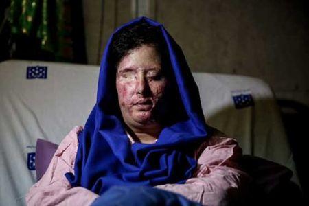 قربانی اسیدپاشی اصفهان: قبلی ها بخشیدند و تکرار شد؛ من نمیبخشم