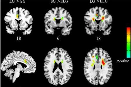 اخبار علمی,خبرهای علمی ,تاثیر مشابه عشق و مذهب بر مغز