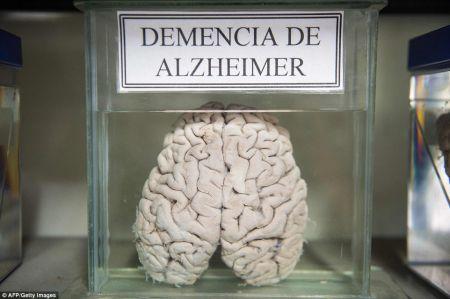 اخبارگوناگون,خبرهای گوناگون,موزه مغز های واقعی