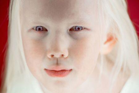 دختر زیبایی که شبیه عروسک