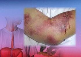شناسایی 10 مورد مشکوک به کریمه کنگو در یزد