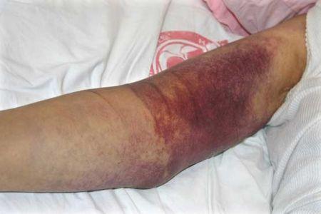 اخبارپزشکی,خبرهای پزشکی , تب کریمه کنگو