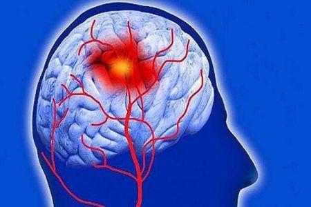 بهبود عملکرد مغزی بازماندگان سکته با ورزش