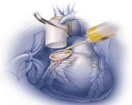 اخبارپزشکی ,خبرهای پزشکی,ساخت چسب جراحی
