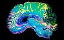 اخبارعلمی,خبرهای علمی,مغز