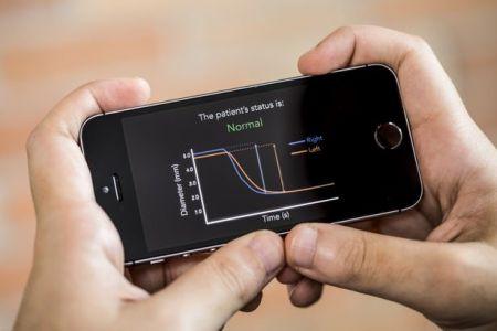 تشخیص ضربه یا تکان مغزی به کمک یک اپلیکیشن موبایلی +تصاویر