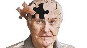 اخبارپزشکی ,خبرهای  پزشکی,آلزایمر