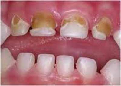 جنس دندان در خراب نشدن آن چقدر اهمیت دارد؟