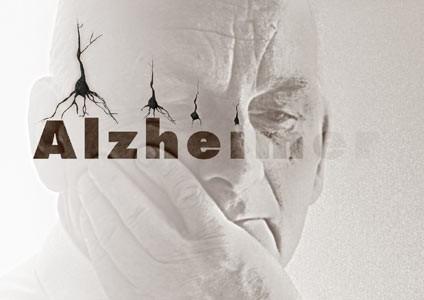اخبار پزشکی,خبرهای پزشکی ,آلزایمر