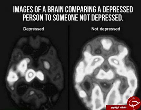 اخبار,اخبارگوناگون,مغزدرحالت افسردگی