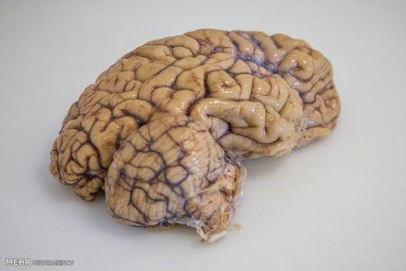 نخستین مدل مجازی مغز ساخته شد