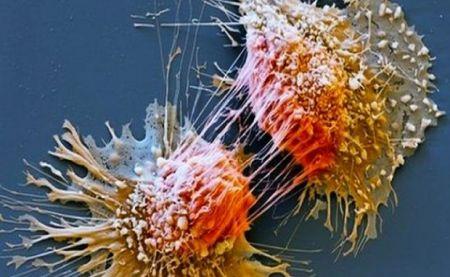 کشف پروتئینی که روند گسترش سرطان را کاهش می دهد