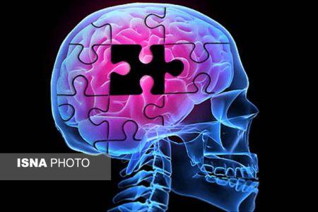 اخبارپزشکی ,خبرهای پزشکی , آلزایمر