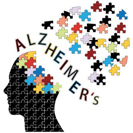 اخبارپزشکی,خبرهای پزشکی ,آلزایمر