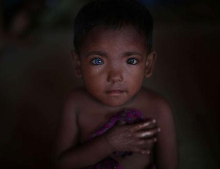 عکسهای جالب,عکسهای جذاب,چشم های دو رنگ پسربچه