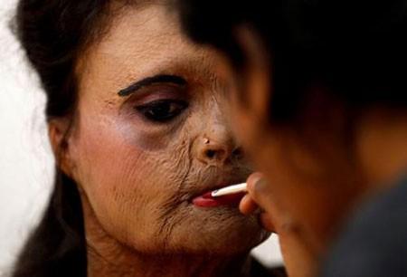 عکسهای جالب,عکسهای جذاب,قربانی حمله اسیدی