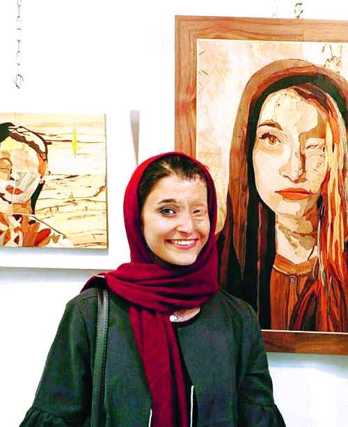 گفتوگو با یکی از قربانیان اسیدپاشی اصفهان؛ روزگارم سخت است، ولی زندگی میکنم