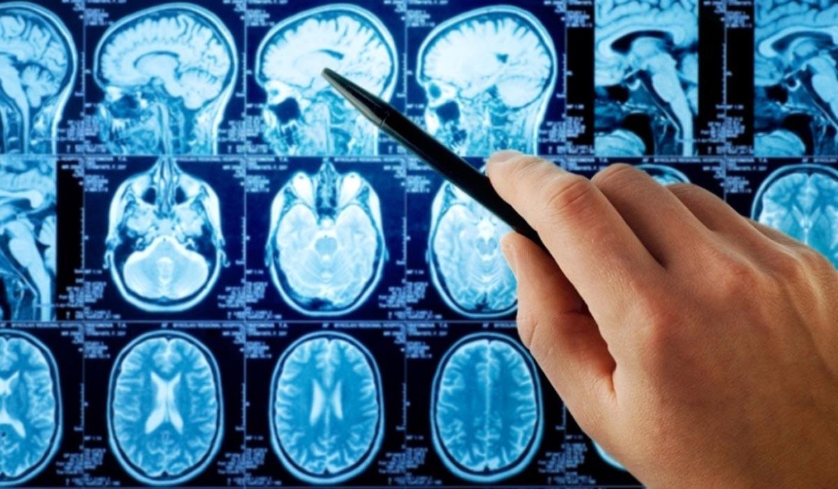اخبار پزشکی ,خبرهای پزشکی,سرطان مغز