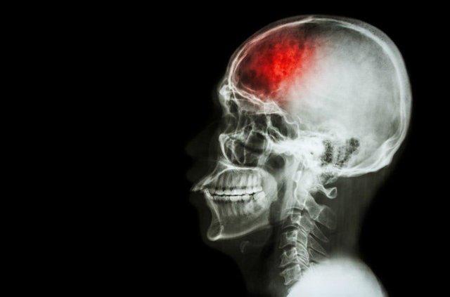 اخبار پزشکی ,خبرهای پزشکی, سکته مغزی