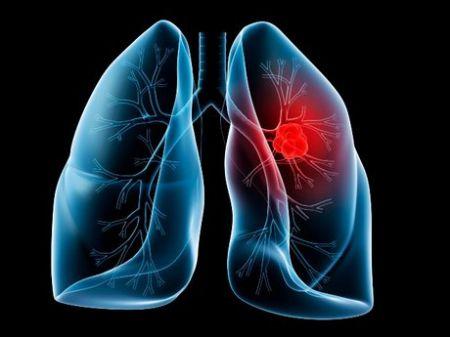 اخبار پزشکی ,خبرهای پزشکی,سرطان ریه