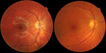 اخبار پزشکی ,خبرهای پزشکی, بینایی
