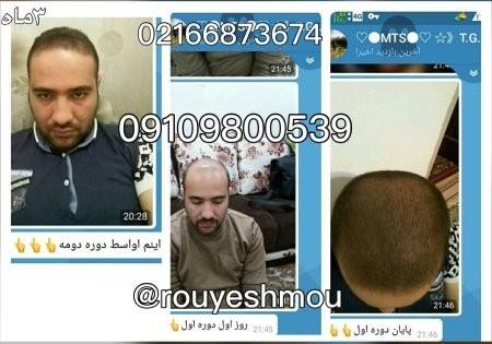 درمان ریزش مو,درمان ریزش مو با محصولات رویش سبز لاوین