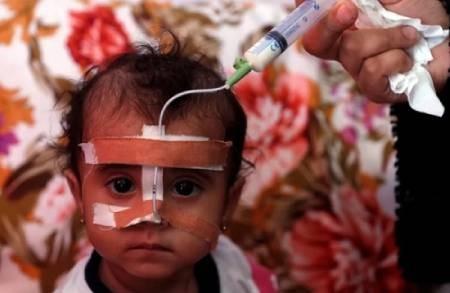 عکسهای جالب,عکسهای جذاب, کودک یمنی