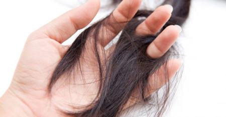 مو کنی , اختلال مو کنی,درمان وسواس موکنی