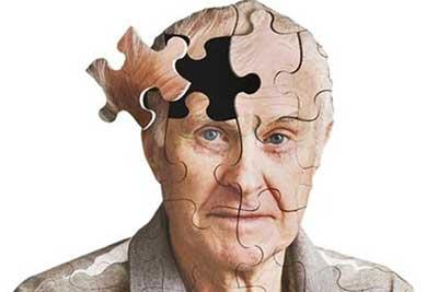 پیشگیری از زوال عقل