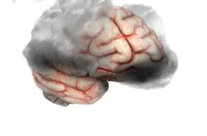 پیر شدن مغز,پیشگیری از پیر شدن مغز