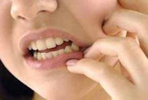 مواد بی حسی دندانپزشکی روزه را باطل می کند؟