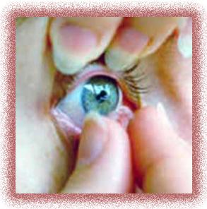 لنز های چشمي