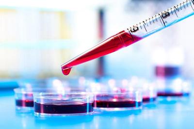 تشخیص سرطان های متفاوت با یک آزمایش,ابتلا به سرطان