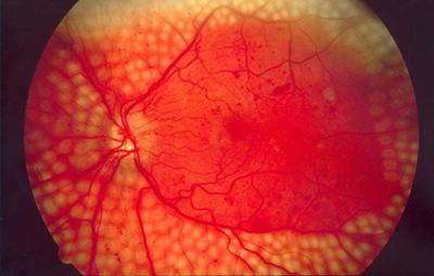کشف چربی برای جلوگیری از بیماری چشم دیابتیک, بیماری چشم دیابتیک