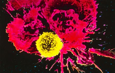 نحوه تشکیل تومور سرطان,علت به وجود آمدن تومورهای سرطانی