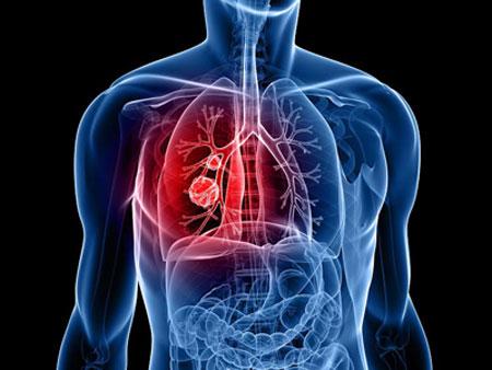 درمان سرطان, درمان سرطان با ویرایش ژنی