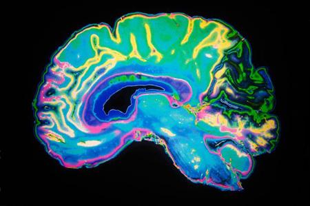 ذرات آلوده در مغز,کشف ذرات آلوده هوا در مغز