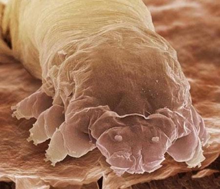 تصاویر حشرات زیر میکروسکوپ,تصاویر میکروسکوپی,عکس حشرات در زیر میکروسکوپ