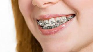 دندان,دلیل کج رشد کردن دندان,دندانهای آسیاب