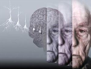 آلزایمر,ویتامین دی,عوارض کمبود ویتامین دی