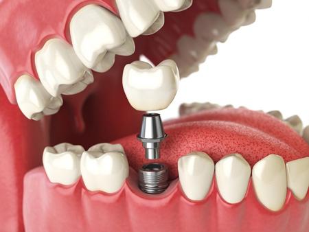 آشنایی با ایمپلنت,ایمپلنت دندان