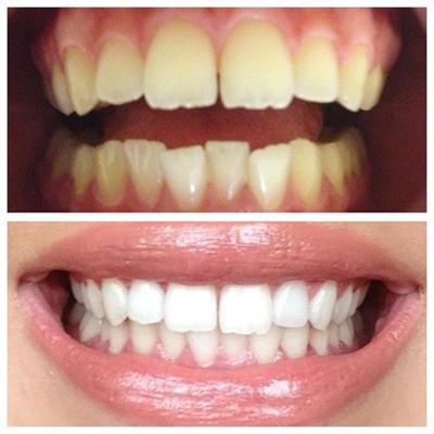 [عکس: tooth2-whitening2-methods1.jpg]
